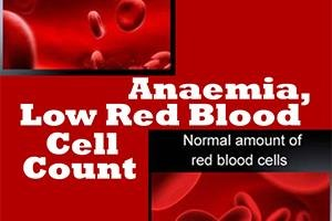 anaemia causes symptoms tackling dos and dont